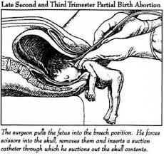 Abortion the truth about Pro-