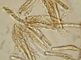 Image of Ascospores of